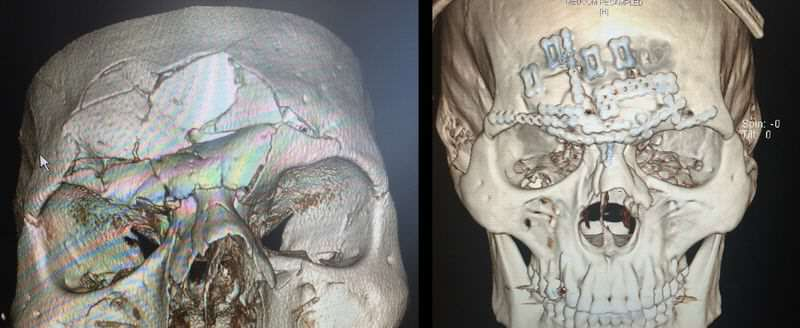 MMA Fighter Reveals Monster Scar Following Horrific Skull Fracture cyborg before after ct.2