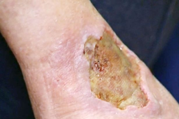 Flesh Eating Bug Thats Leaving People With Zombie Wounds Is Spreading Fast A Buruli ulcer on a patient in Australia 1
