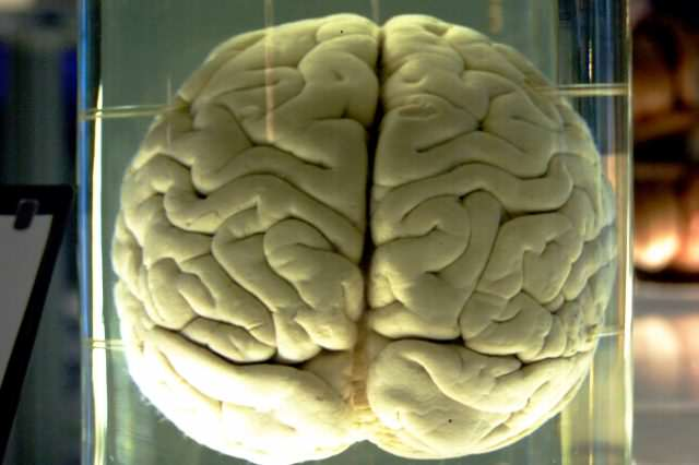 BREAKING: Were Living In A Computer Controlled By Evil Scientist Chimp Brain in a jar 640x426