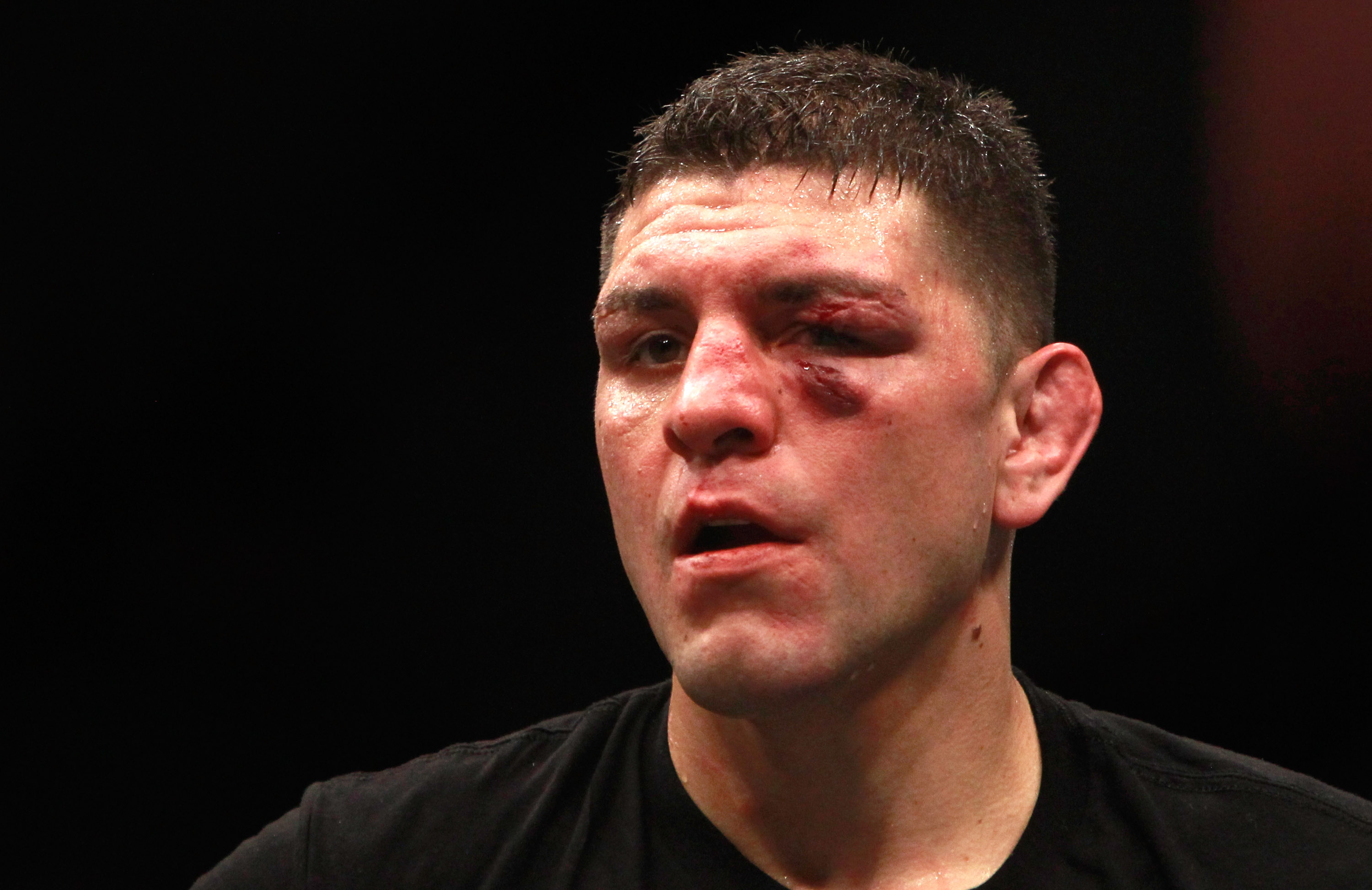 Nick Diaz Reveals What Happened When Three Guys Tried To Attack Him GettyImages 462600456