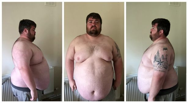 Man Too Fat For Theme Park Rides Loses An Incredible 17 Stone JS98006561