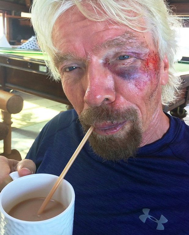 Photos Show Richard Branson After Horror Crash That Nearly Killed Him Screen Shot 2016 08 26 at 13.10.41