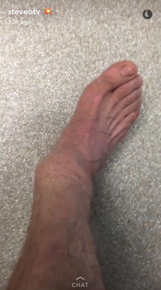 Steve O Shares Horrendous NOPE Photos Of Broken Legs af70444457c4118c136a61a45ae81f5c