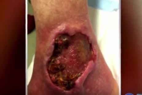 Flesh Eating Bug Thats Leaving People With Zombie Wounds Is Spreading Fast ulcer