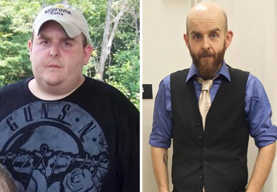 Man Makes Incredible Transformation But Keeps Excess Skin For Inspirational Reason skin4