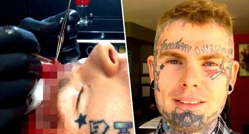 Man Gets Whole Forehead Cut Off In Brutal Face Tattoo Removal 10217UNILAD imageoptim overc