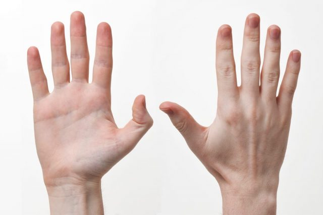 Can You Spot Whats Wrong With This Guys Hands? 844UNILAD imageoptim Human Hands Front Back 640x426