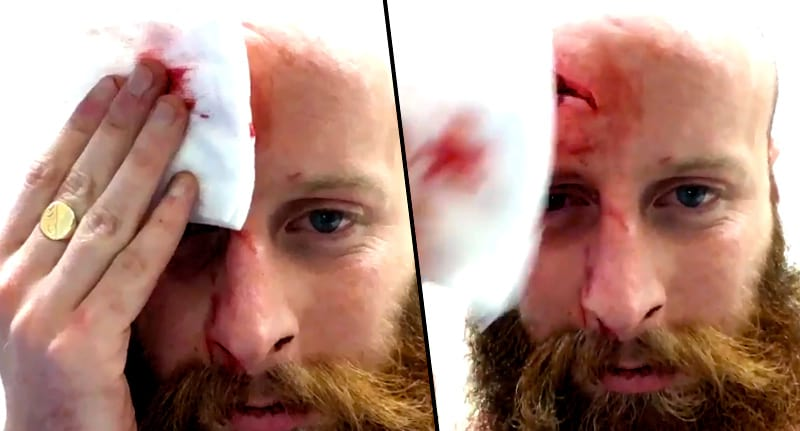 This Guy Headbutted A Curb And The Result Is So, So Grim wsi imageoptim head