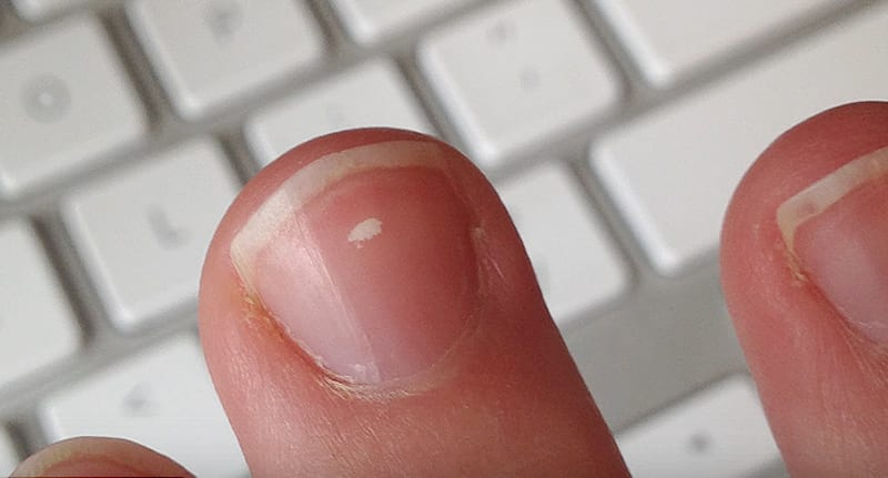Heres What Those Little White Marks On Your Nails Actually Mean 10406UNILAD imageoptim milk spots nails fb