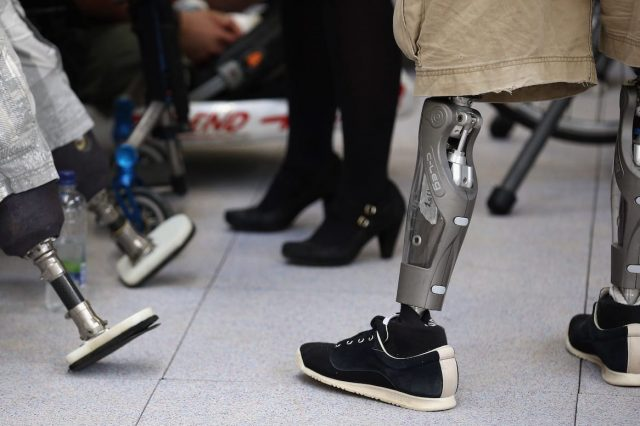 Transabled People Are Cutting Off Their Limbs To Become Disabled 42361UNILAD imageoptim GettyImages 154338277 640x426