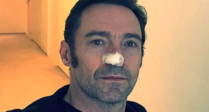 high jackman nose plaster cancer