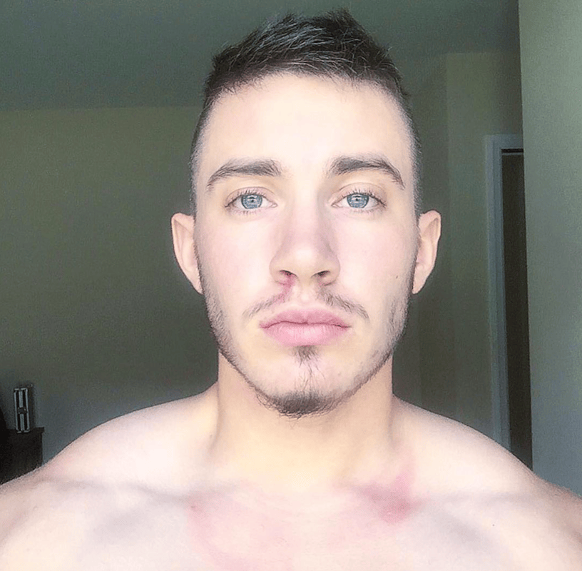 Transgender Man Shares Unrecognisable Photos Before And After Transition