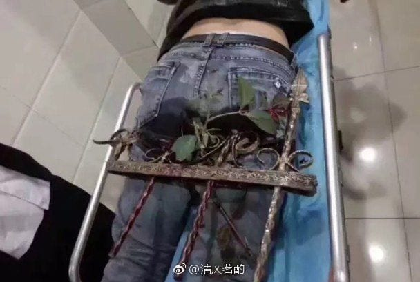 Man Impaled In The Butt By Two Steel Rods After Falling