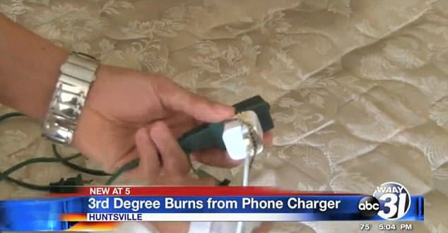 Man Lucky To Be Alive After Freak Accident While iPhone Charged Overnight 1026 burns 2