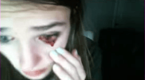 Cat Scratches Girl Gamer In The Eye