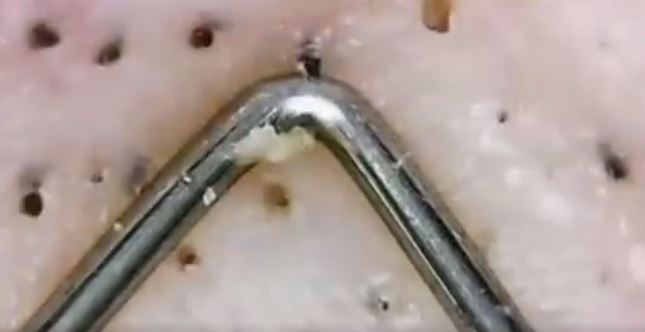 zoomed in video of blackhead removal is absolutely f*cking disgusting, Skeleton