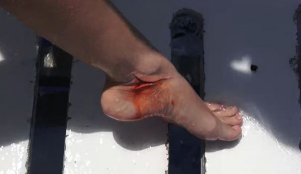 The Truth Behind Viral Video Of Porn Star Being Attacked By Shark foot 605x350 1