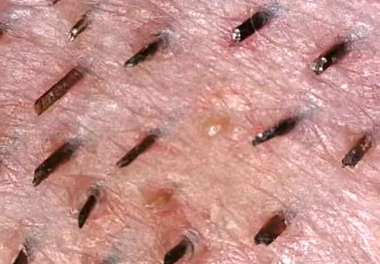 Pimples Being Popped Under A Microscope Is F*cking Disgusting