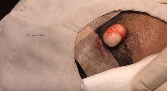 Dr. Pimple Popper Squeezes Huge Mozzarella Ball From Guys Forehead kinda