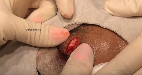 Dr. Pimple Popper Squeezes Huge Mozzarella Ball From Guys Forehead pnll