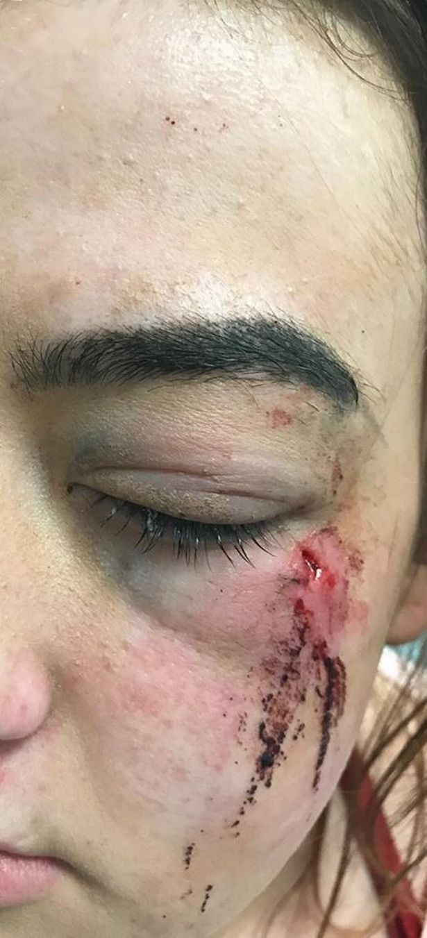 Teenage Girl Left With Serious Injuries After Thugs Lob Brick At Her Face 19965031 10155630145119203 38641927 n