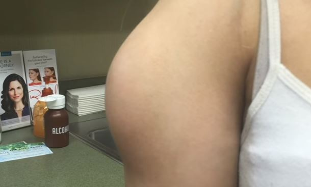 Dr Pimple Popper Pulls Giant Cyst Out Of Girl's Arm