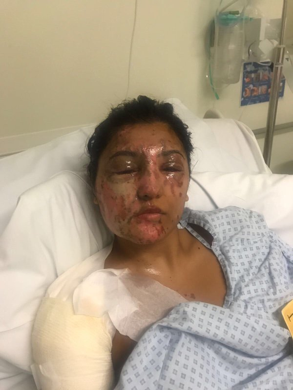 Five Acid Attacks Took Place In London In Just 90 Minutes acid attack 4