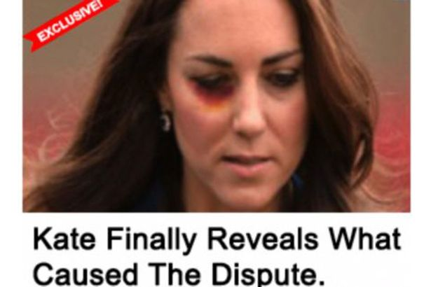Dark Truth Behind Image Of Kate Middleton With A Black Eye kate