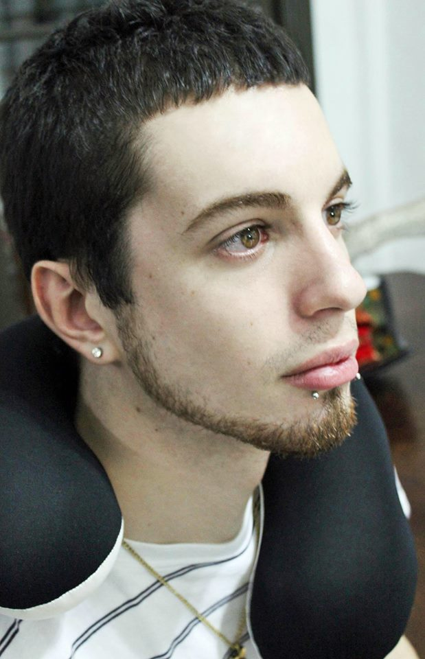 Student Spends £36,000 On Surgery Because He Wants To Look More Like An Elf 21073973 10154736124746196 960353374 n