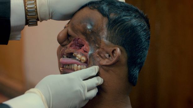 Guy Who Had Half His Face Ripped Off By Tiger Reveals His