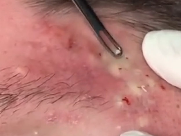Bizarre Psychological Reason People Are Obsessed With Popping Pimples