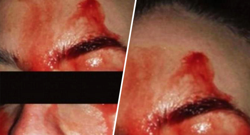 Bizarre Case Of Woman Who Sweats Blood Finally Solved By Doctors blood sweat fb 2