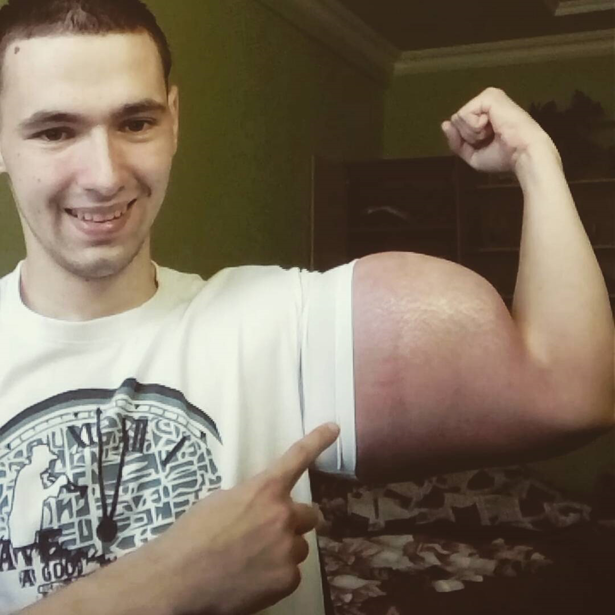 'Bodybuilder' Shows Off Results Of Deadly Chemical Injections