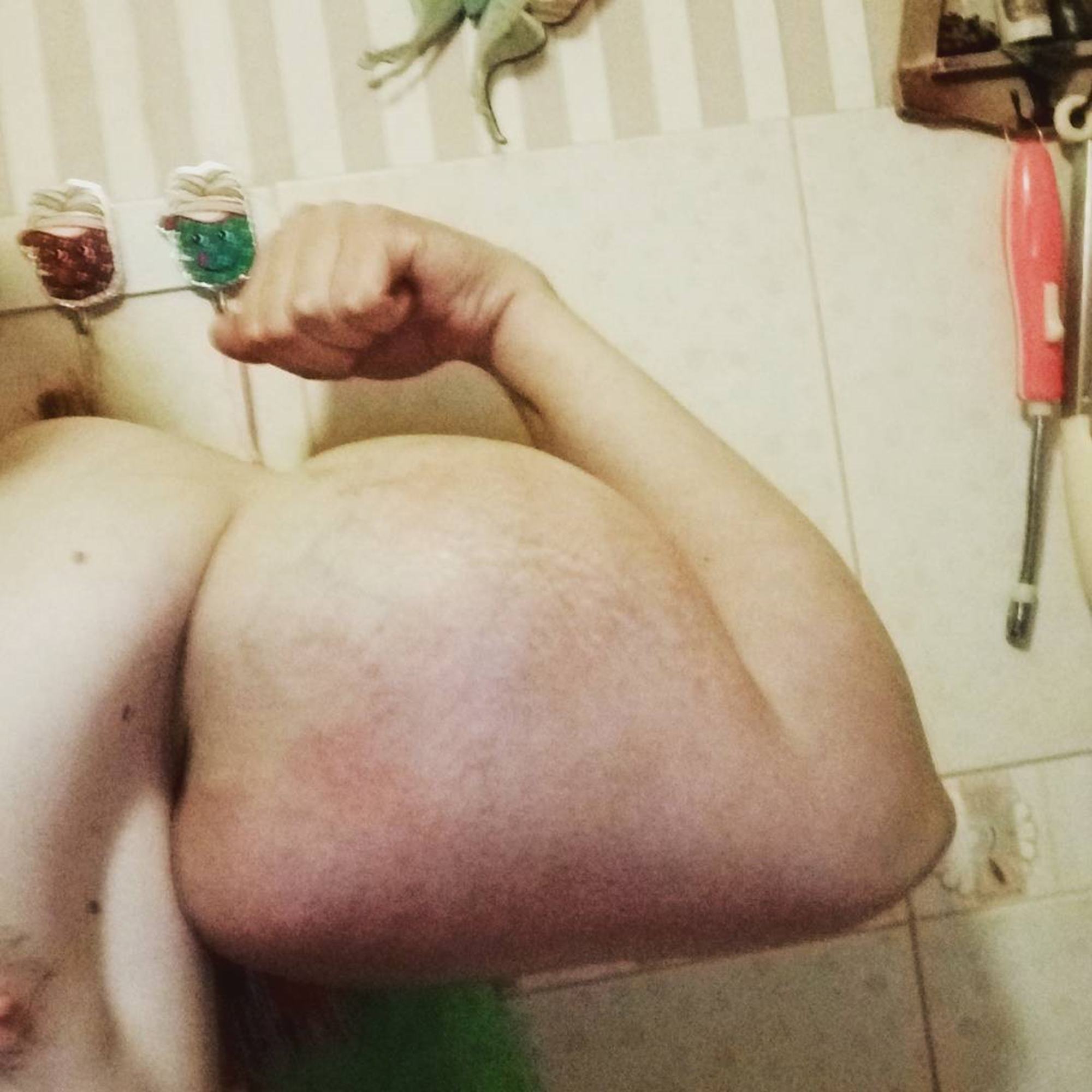 Bodybuilder Shows Off Results Of Deadly Chemical Injections CEN ChemicalBodybuilder 02