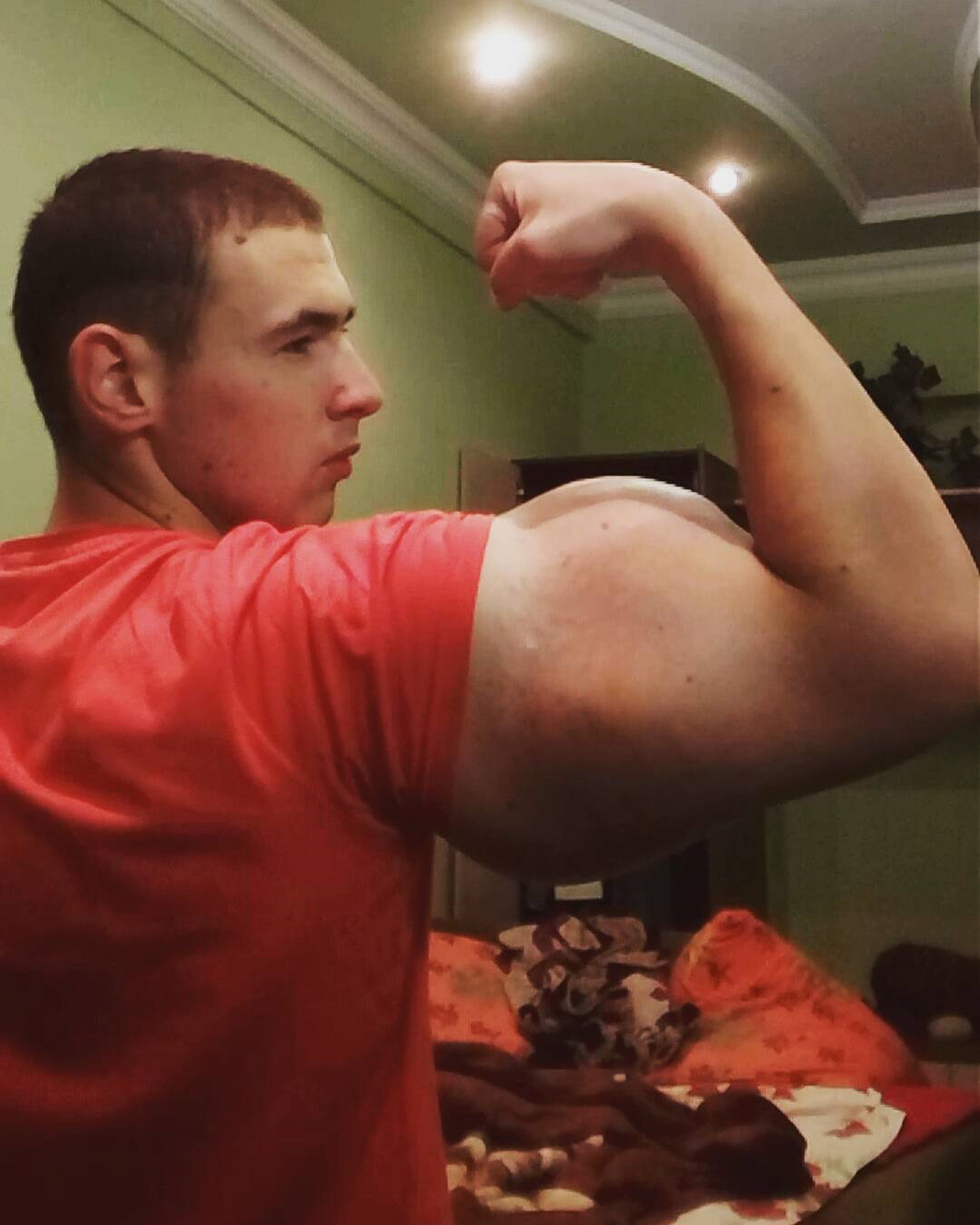 Bodybuilder Shows Off Results Of Deadly Chemical Injections CEN ChemicalBodybuilder 03