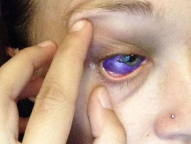 Model Whose Eye Tattoo Went Horribly Wrong Wants Eye Removing Purple Eye 1 618x468