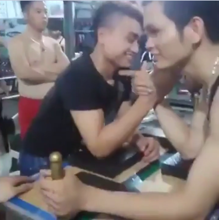Mans Bone Breaks Backwards During Arm Wrestle arm wrestle 1