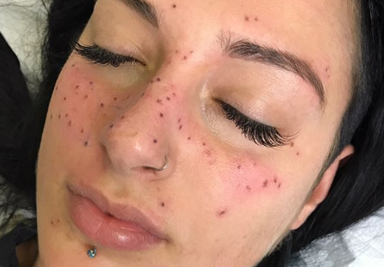 6f84b3da6 Getting A Star Sign Tattoo On Your Face Is Latest Ridiculous Beauty Trend