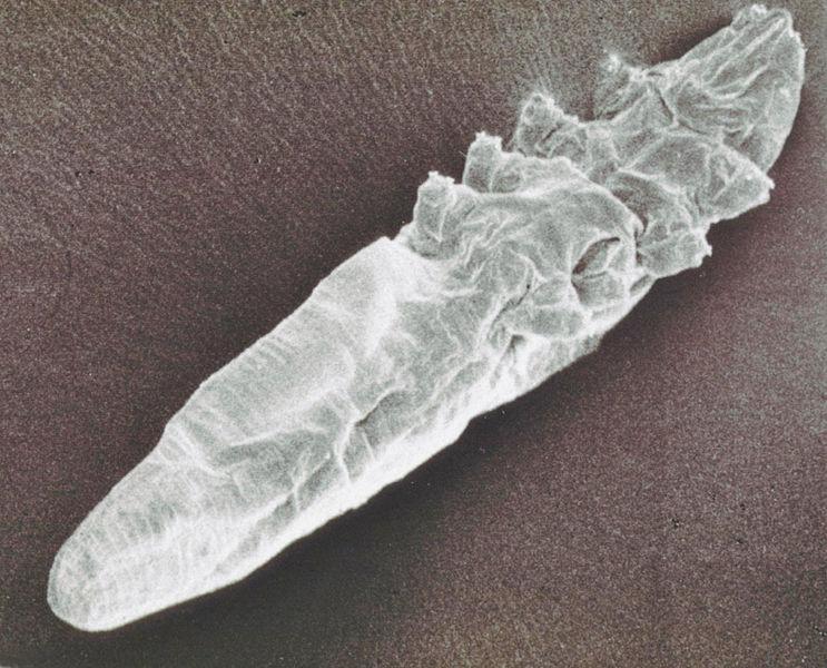 Woman With Itchy Eyes Finds Over 100 Parasites living In Her Eyelashes 743px Demodex mite scanning electron microscope image 2