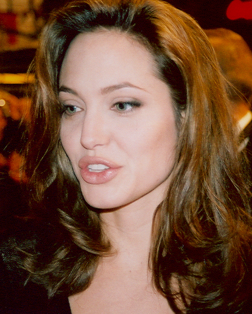 Surgeons Shouldnt Be Allowed To Perform Surgery In Extreme Cases Angelina Jolie