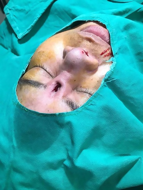 Womans Botched Nose Job Leaves Her With Horrific Consequences %name