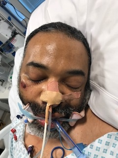 Police Appeal For Help Identifying Man Found In Life Threatening Condition E269 17 unidentified male