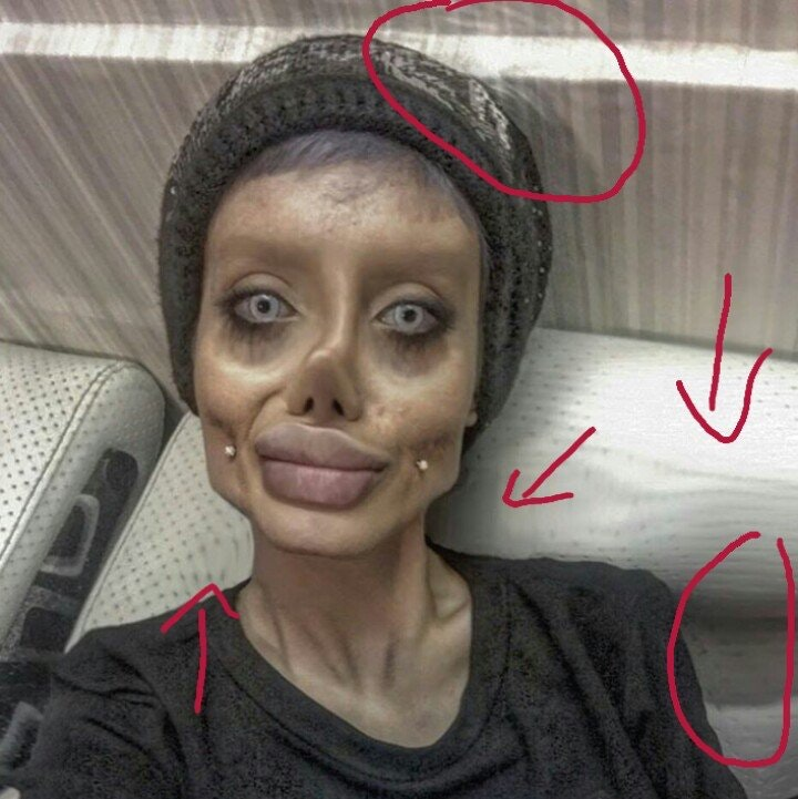 Angelina Jolie Fan Who Had 50 Surgeries Speaks Out For First Time LAXu91qdag6NCyqhCCjaYoso3lScJC4FnSDYf lQK18
