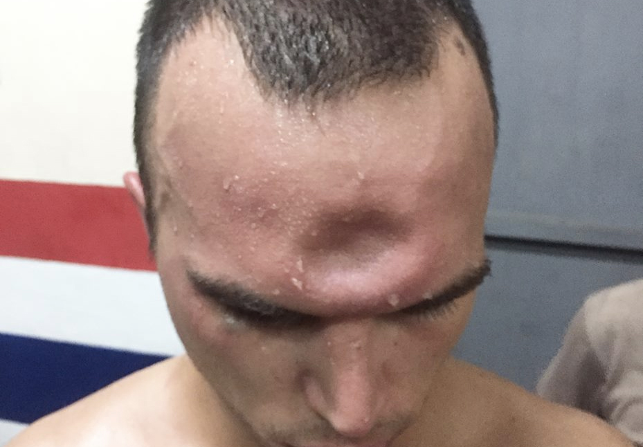 Muay Thai Boxer Suffers Most Horrific Injury After Elbow To Skull Muay Thai injury