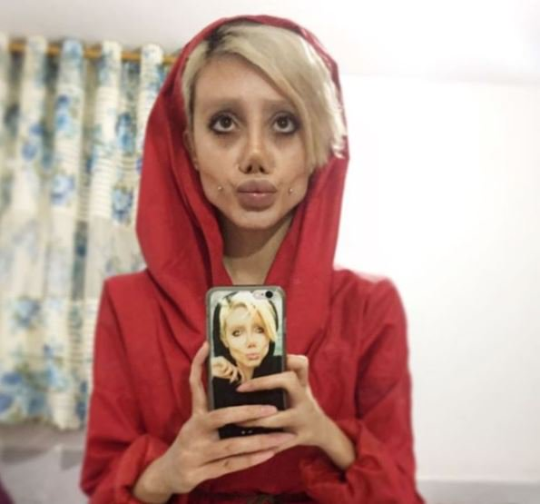 Angelina Jolie Fan Who Had 50 Surgeries Speaks Out For First Time Sahar 1