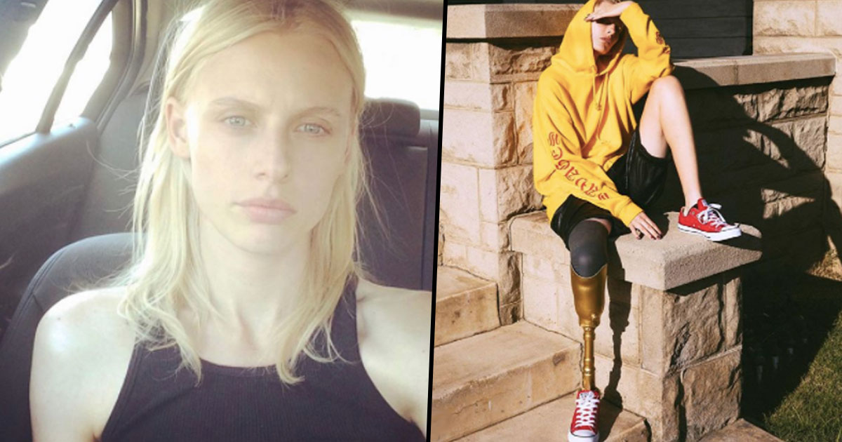 Model Who Lost Her Leg After Using Tampon For Too Long Will Lose Other Leg TSS face