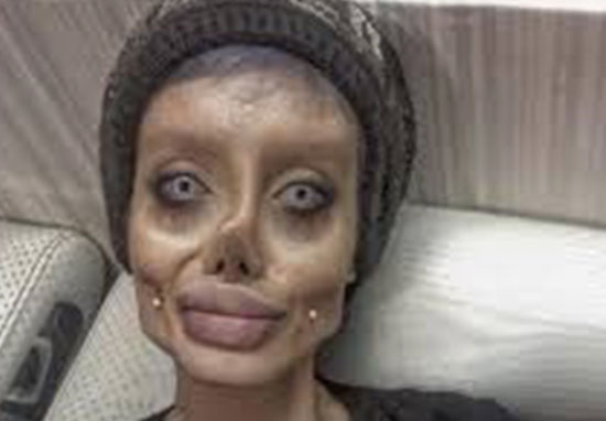 Angelina Jolie Fan Who Had 50 Surgeries Speaks Out For First Time WEBTHUMBNEW 3r44