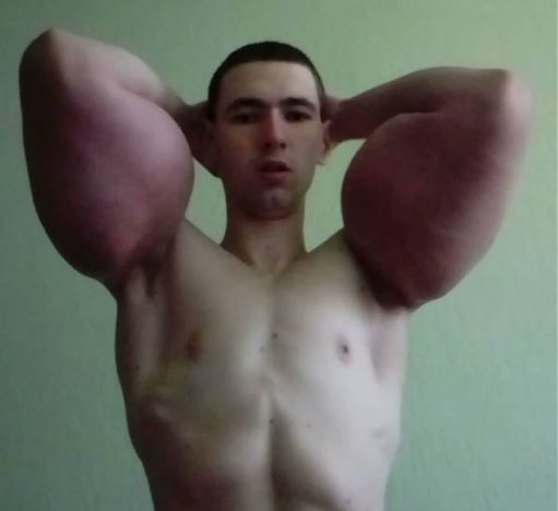 Bodybuilder Who Used Deadly Chemical Injections Suffers Worrying Side Effect bright red massive 511x468