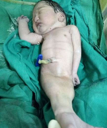 Mother Gives Birth To Real Life Mermaid mermaid child 1 1