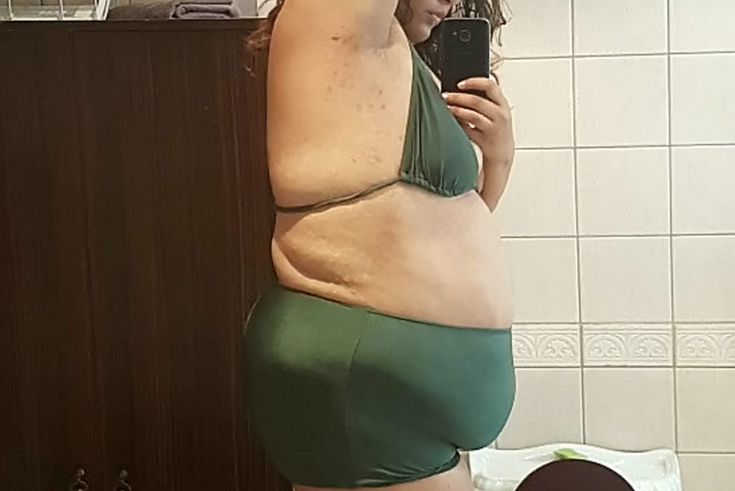 Fast Food Addict Lighter Than She Was Aged 10 After Losing Half Her Body Weight weight to go fa 79899 1048x700